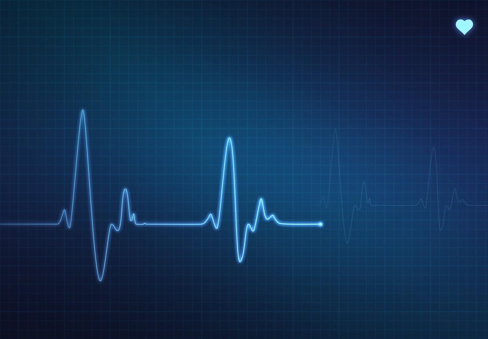 bigstock-Heartbeat-Monitor-8001637